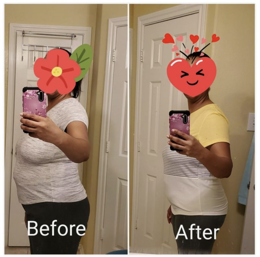 Before & after Stomach Swollen picture After Hysterectomy